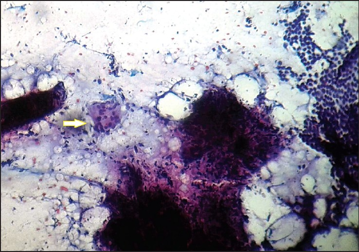 Figure 3: The cytology smear from an epididymal nodule showing epithelioid granuloma, Langhans giant cells (arrow), and normal epididymal epithelial cells on a sheet (10×, Pap stain)