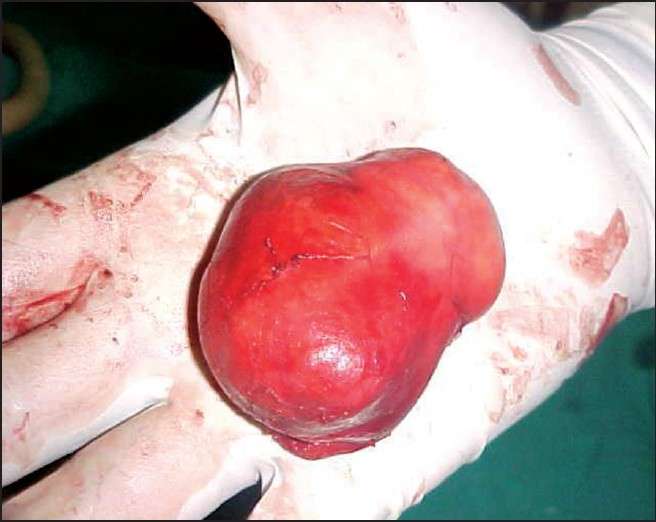 Figure 4: Cyst after removal