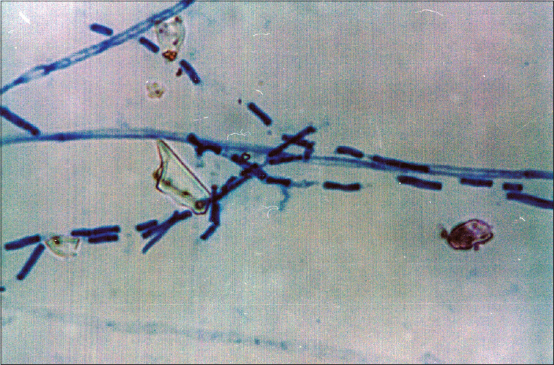 Figure 8: <i>Geotrichum</i> species seen under microscopy using lactophenol cotton blue stain (×20)