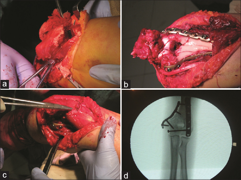 Figure 1: Intraoperative photograph of ORIF including V-shaped transection approach, internal fixation and reconstruction of soft tissue, and postoperative X-ray image (a) approach to the fracture site through V-shaped transection of triceps, (b) internal fixation of distal humerus using double plating, (c) reconstruction of triceps, (d) X-ray image of postoperative reduction and fixation status