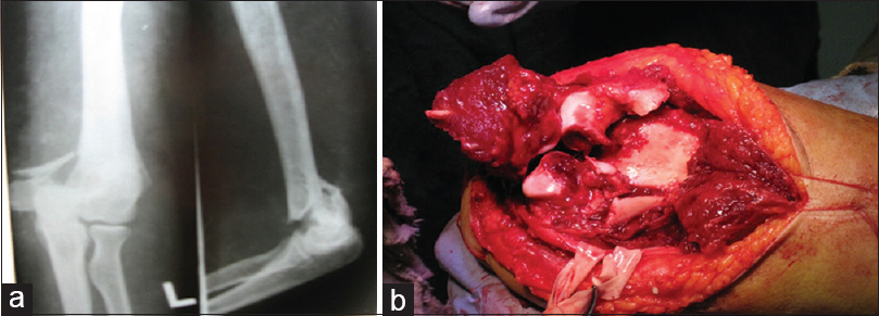 Figure 5: A 42-year-old woman was injured by falling on her left arm (a) preoperative X-ray finding on the anteroposterior and lateral view, (b) intraoperative finding